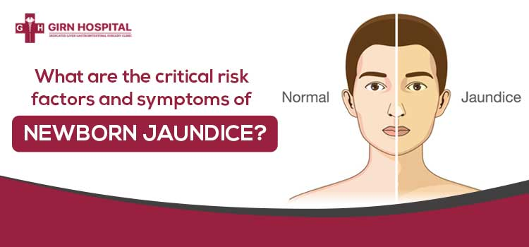 What are the critical risk factors and symptoms of newborn jaundice?