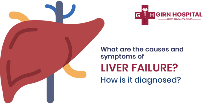 WHAT ARE THE CAUSES AND SYMPTOMS OF LIVER FAILURE? HOW IS IT DIAGNOSED