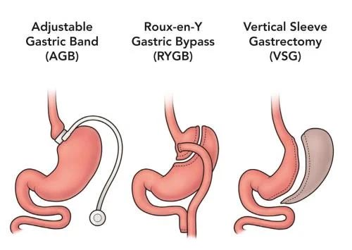 What is gastrointestinal surgery