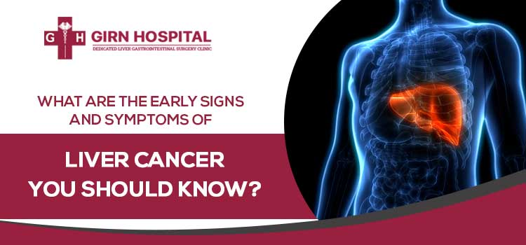 What are the early signs and symptoms of liver cancer you should know?