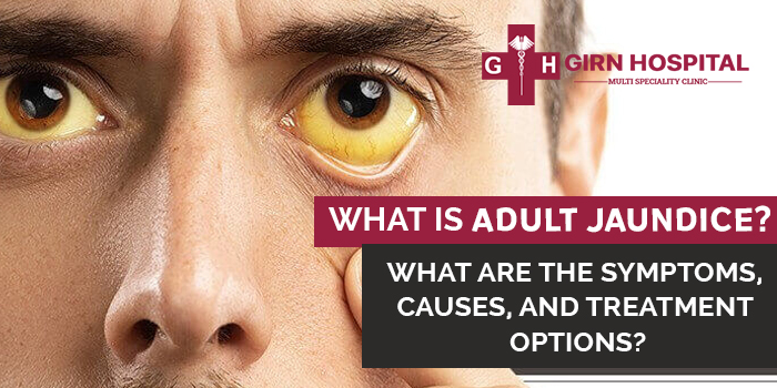 What-is-adult-jaundice--What-are-the-symptoms,-causes,-and-treatment-options