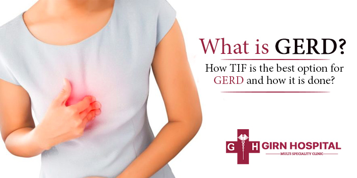 What is GERD? How TIF is the best option for GERD and how it is done?