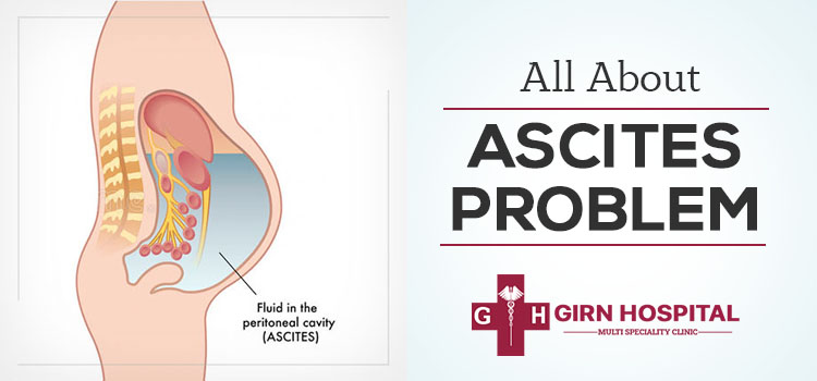Ascites: What are its causes, symptoms, diagnosis, and treatment options?